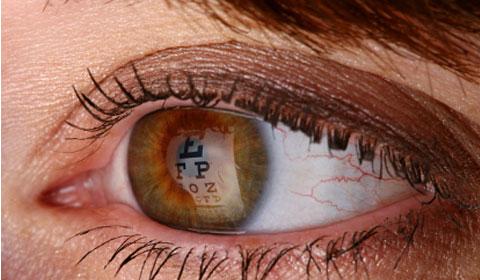 Augenverletzungen